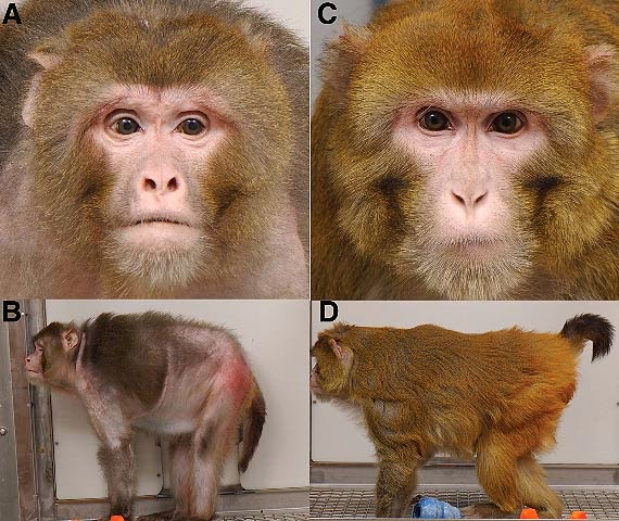 Calorie Restriction Diet in Rhesus Monkeys and Humans